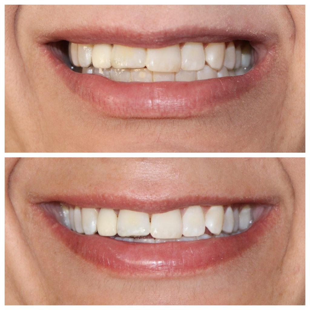 At Home Teeth Whitening Systems for Sensitive Teeth: Does it Work?